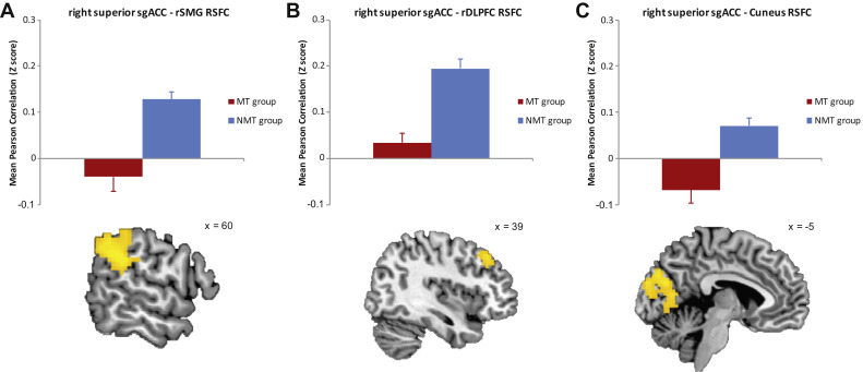 Evidence for Depressogenic Spontaneous Thoughts and Altered